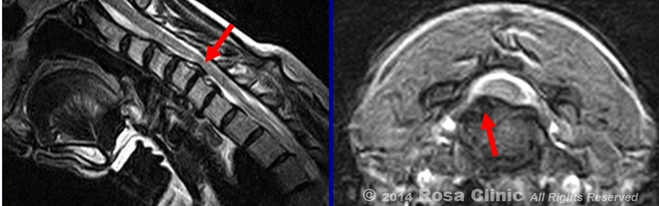 Subsequent Axial Imaging 960×330